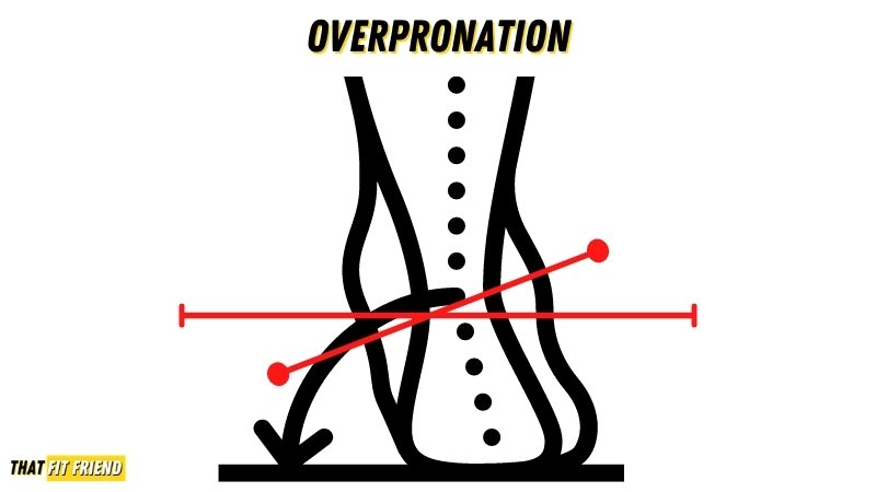 what is overpronation
